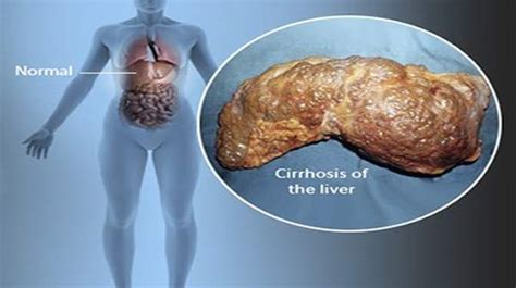 Cirrhosis of the Liver Stages Symptoms & Treatments