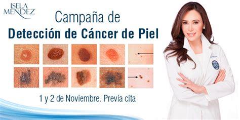 Cirugia de Cancer de piel. Cirugía -CD Isela Méndez