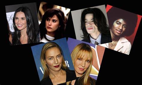 Cirugía estética de los famosos, el antes y después