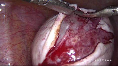 Cisto de ovário - Tratamento laparoscópico - YouTube