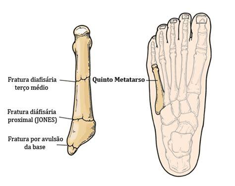 Clínica e Cirurgia do Pé e Tornozelo