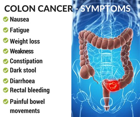 Colon Cancer - Causes, Diagnosis and Treatment