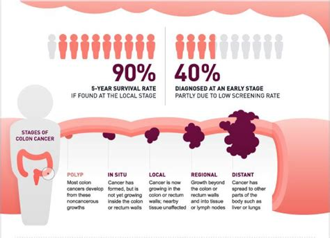 Colon Cancer Early Symptoms: What Are the Early Signs?