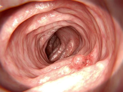 Colon Cancer: Find It Early – Health Essentials from ...