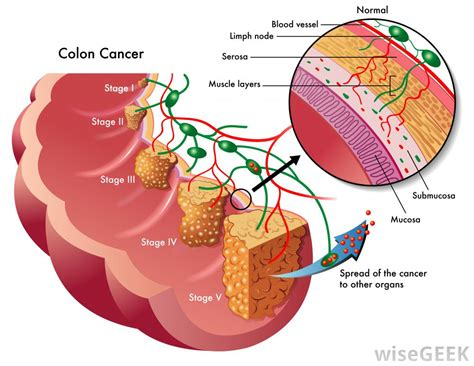 Colonic neoplasms; Cancer of Colon; Colon Cancer