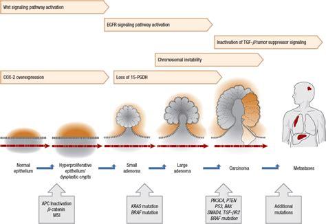 Colorectal Cancer | Basicmedical Key