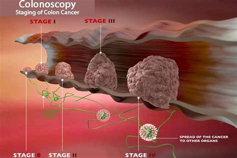 Colorectal Cancer Facts, Symptoms, Diagnosis & Treatments