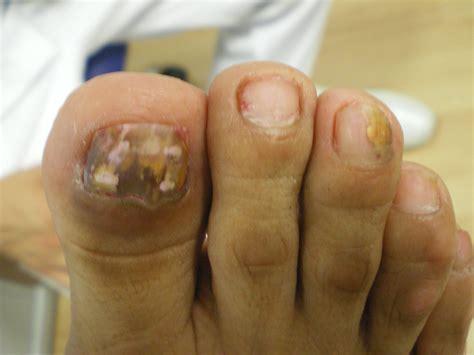 Cómo curar los Hongos en las uñas   Podogrande