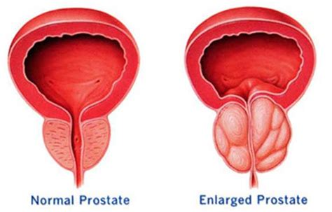 Como curar próstata la (cáncer HPB prostatitis) naturalmente