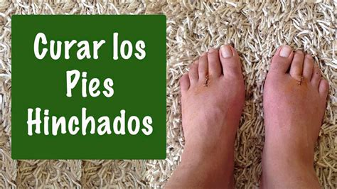 Como desinflamar los pies - Remedios Naturales Para Los ...