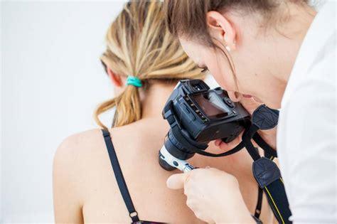 Cómo protegerse del despiadado melanoma | Compañías ...