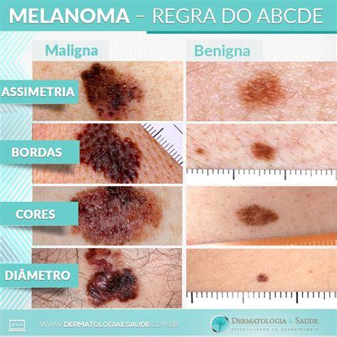 Como reconhecer um melanoma