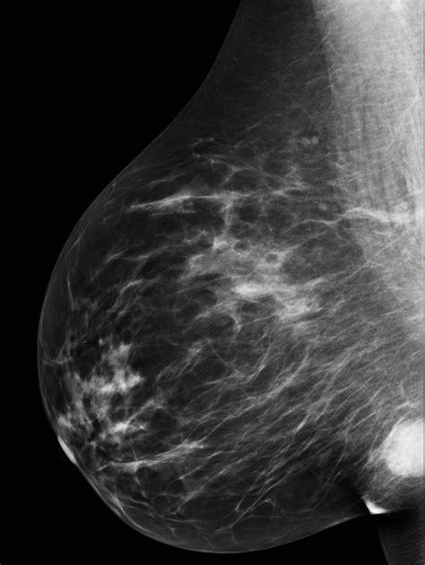 Complex cyst right breast   Image   Radiopaedia.org