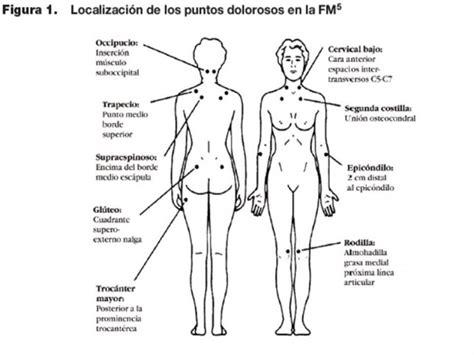 Consecuencias de la fibromialgia (conocerlas es el primer ...