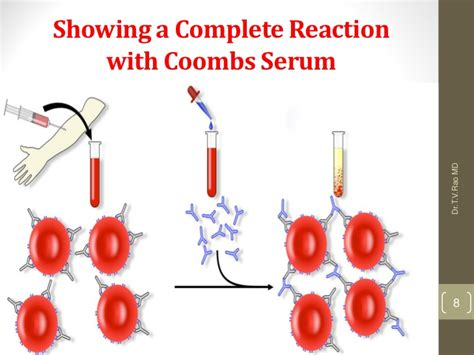 Coombs test