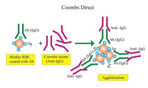 Coombs Test -Part 1- Coombs Direct, Direct-Anti-globulin ...