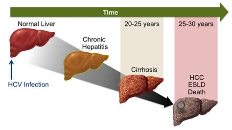 Core Concepts - Natural History of Hepatitis C Infection ...