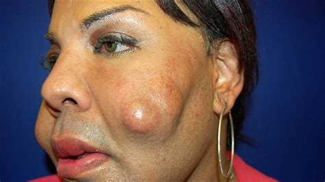 Cosmetic Surgery Disaster: Woman Dubbed 'Cement Face ...