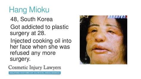 Cosmetic Surgery Disasters