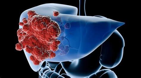 Crean un virus que podría acabar con el cáncer de hígado ...