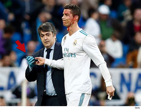 Cristiano Ronaldo Checks Bloody Face with Phone After Head ...