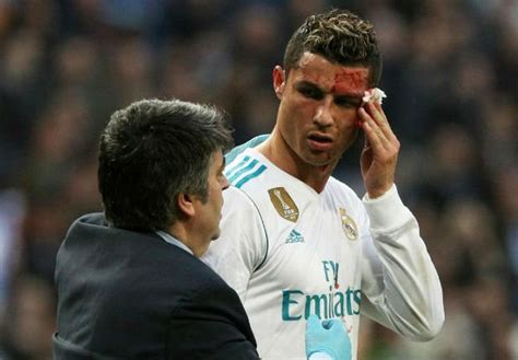 Cristiano Ronaldo checks face injury on phone after his ...