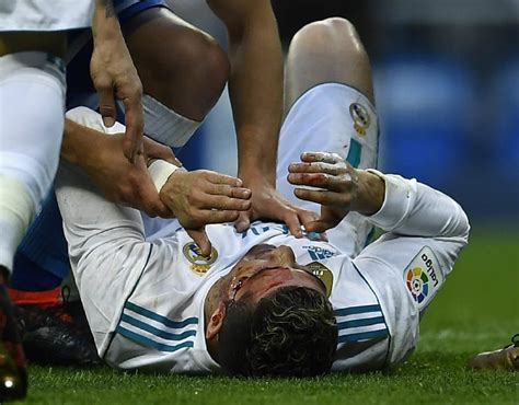 Cristiano Ronaldo injury: Real Madrid star suffers bloody ...