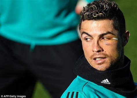 Cristiano Ronaldo sports bruised eye after gruesome injury ...