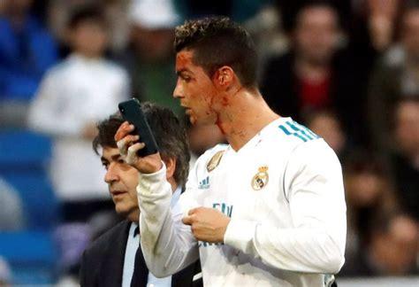 Cristiano Ronaldo Uses Medic's Smartphone To Check Head ...
