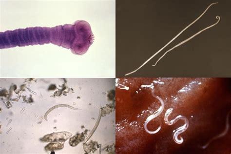 Cuáles son los síntomas de parásitos intestinales - Tua Saúde