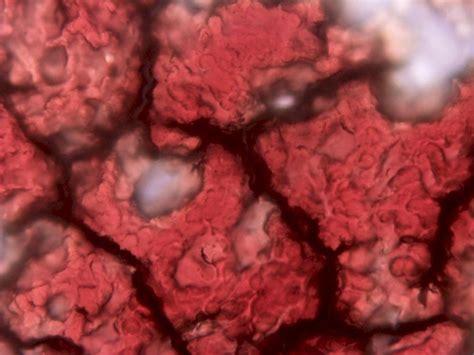 Curso Test HLBO por videoconferencia | Cursos de Medicina ...