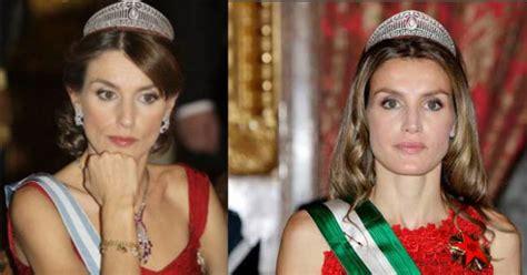 ¿De qué se ha operado la Princesa Letizia?