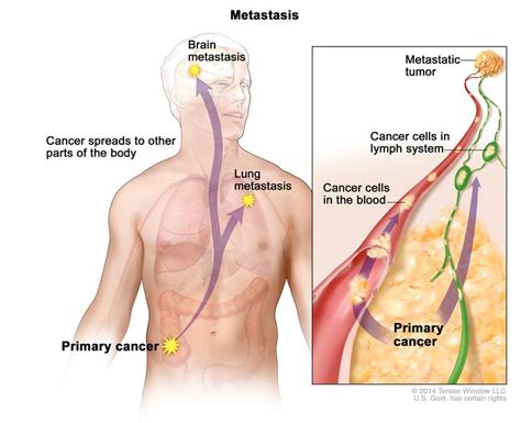 Definition of metastasis - NCI Dictionary of Cancer Terms ...