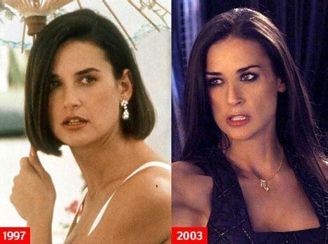 Demi Moore Plastic Surgery Breast Implants, Nose Job ...