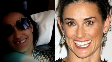 Demi Moore Reveals She s Missing Her Two Front Teeth, So ...