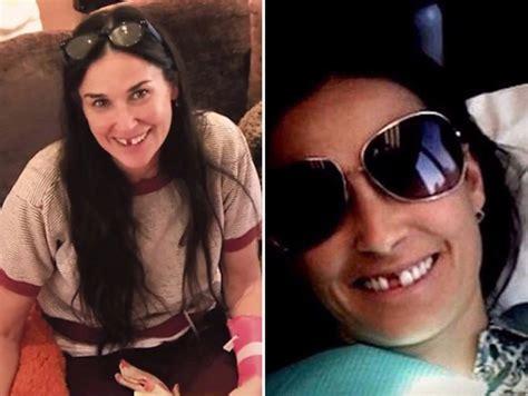 Demi Moore sin dientes por estrés   Tabasco HOY