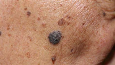 Dermatólogo desarrolla tratamiento para vitiligo ...