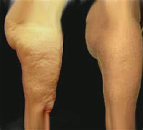 DERMOCELL TECHNOLOGIES: Como eliminar la celulitis  piel ...