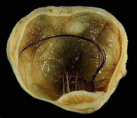 Dermoid cyst   Wikipedia