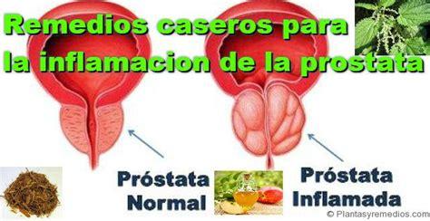 Desinflamar la Próstata Naturalmente. Síntomas, Causas y ...