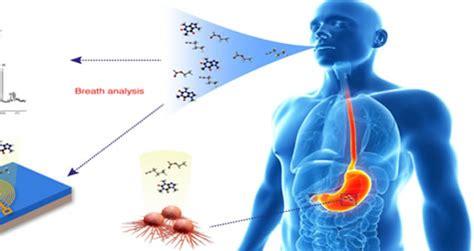 Diagnóstico de infección por Helicobacter pilori: Prueba ...