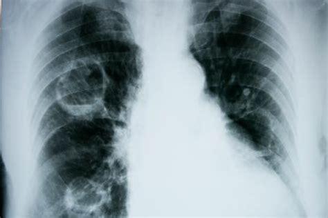 Diagnóstico del edema pulmonar - Salud al día
