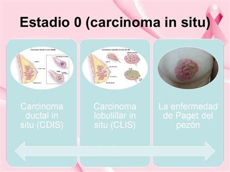 Diapositiva   Cancer de mama