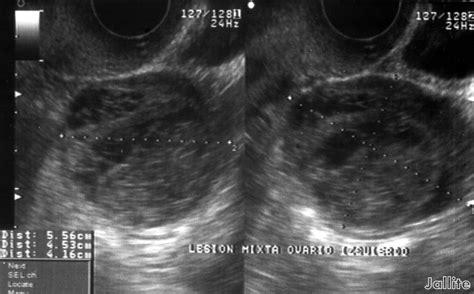 Diario de un Medico II: Quiste Ovario Complejo