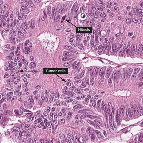 Dictionary   Cancer: Colorectal cancer   The Human Protein ...