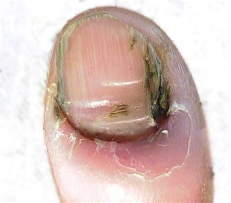 Different types of nail fungus   Awesome Nail