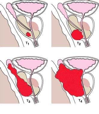Differentiating the Stages of Prostate Cancer - Treatments ...