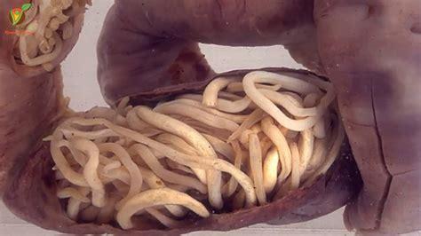 Dile adiós a los parásitos intestinales y elimina las ...