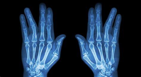 Diplomado en Diagnóstico por Imagen del Sistema Músculo ...
