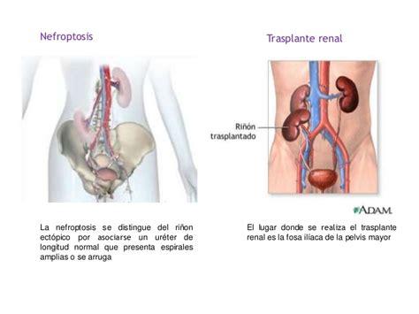 Disfunciones del riñón y dolor de espalda, lumbar y ...
